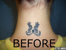 Tattoo Removal NYC before